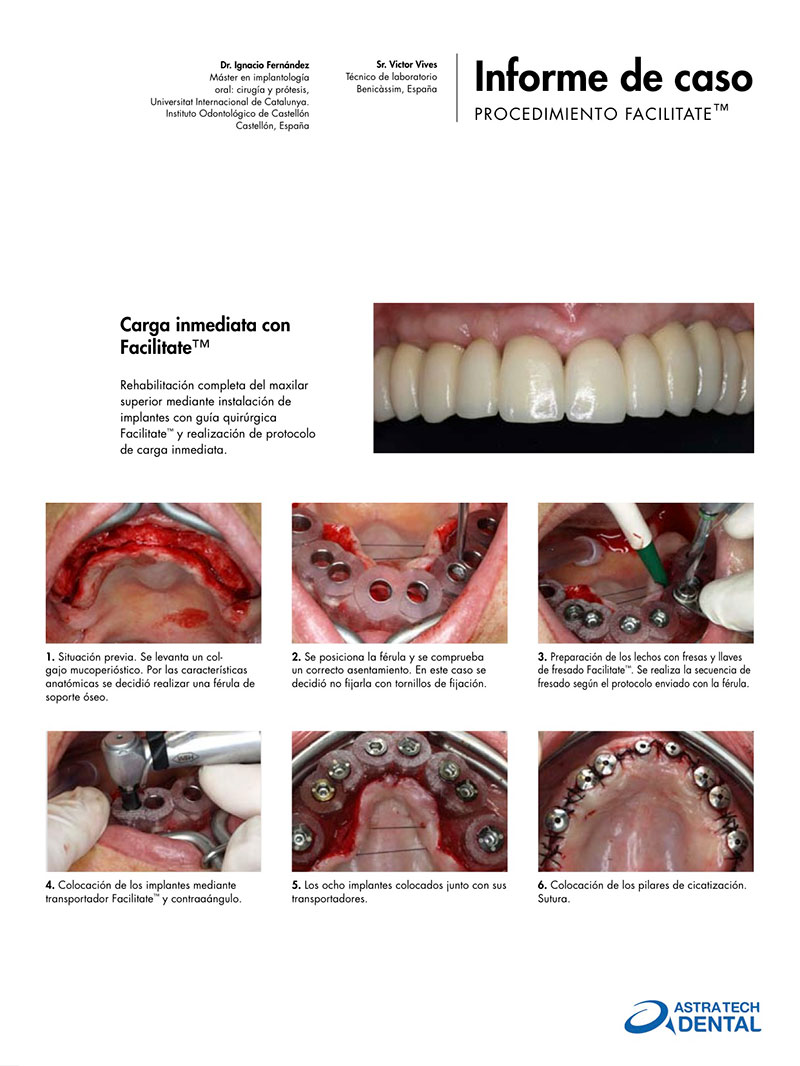 case-report-astra-tech-dentsply-sirona